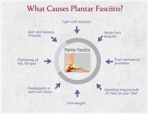 fast-plantar-fasciitis-cure
