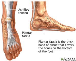 from surgery fasciitis planters step plantar planter teachpedia how to recover
