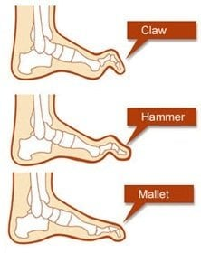 claw_hammer_mallet_toes_top_of_foot_pain