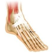 extensor-tendonitis-top-of-foot-pain