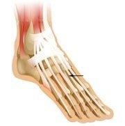 extensor-tendonitis-top-of-foot-pain