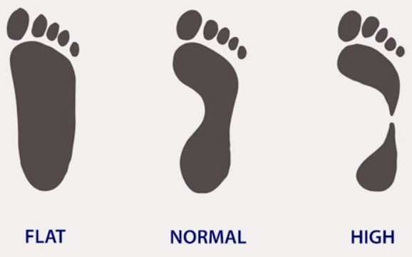flat-normal-high-arched-feet