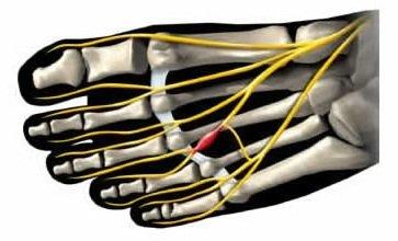 neuritis top of foot pain