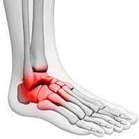 sinus tarsi syndrome top of foot pain