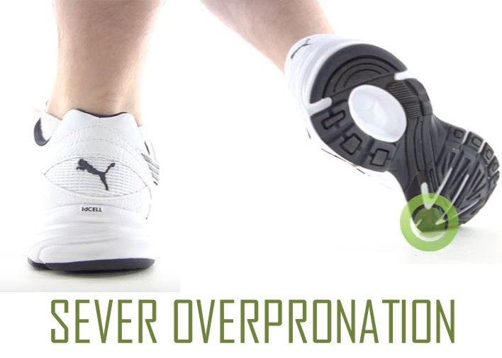 severe overpronation of the foot