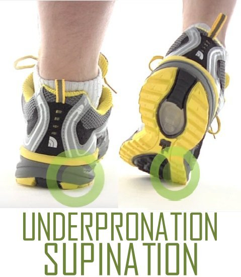 underpronation or supination of the foot