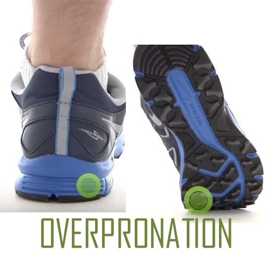 overpronation of the foot