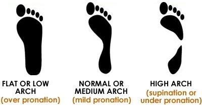 overpronation-mild-pronation-underpronation-comparison